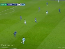 Leicester City 1:1 Manchester City