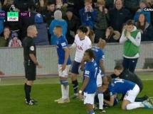 Kontuzja Gomeza z Evertonu