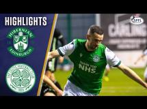 Hibernian 2:2 Celtic