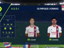 Olympique Lyon 1:1 Lorient